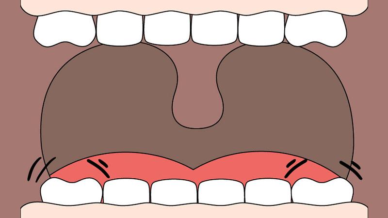 denti che si muovono 1