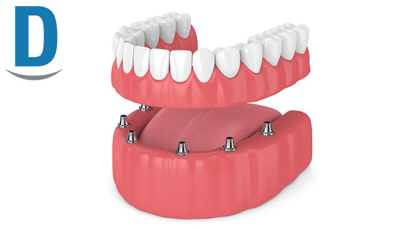 dentiera fissa
